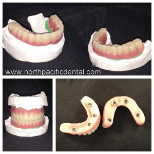 Crystal Ultra Hybrid ceramic dentures